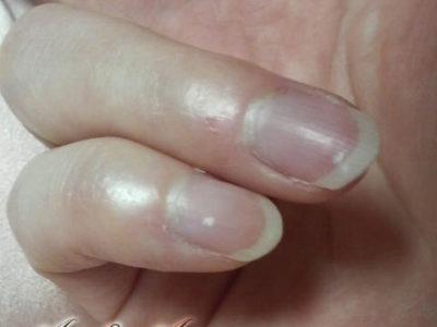 小指と薬指の爪の白点