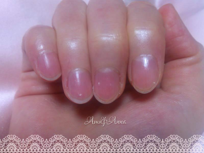 Amiの人差し指、中指、薬指に出た白点
