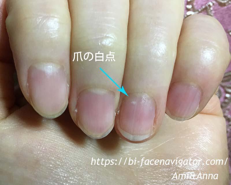 薄く消えそうな爪の白点