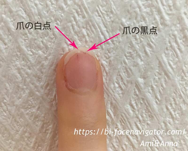 爪の白い点と爪の黒い点が爪の先に同時に現れている写真