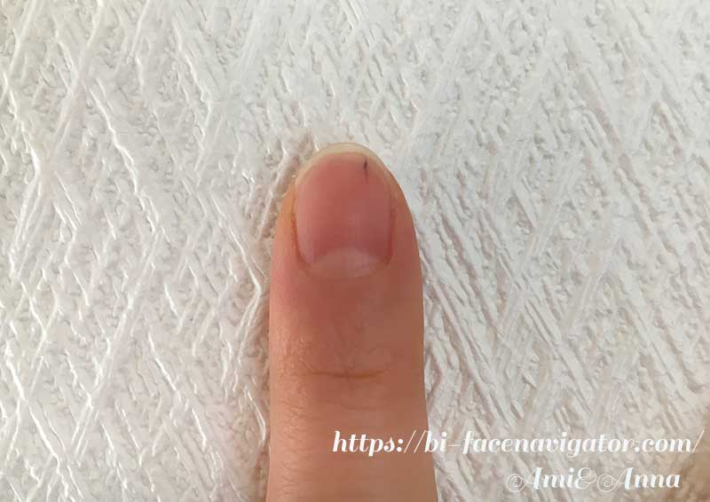 人差し指の爪の黒点