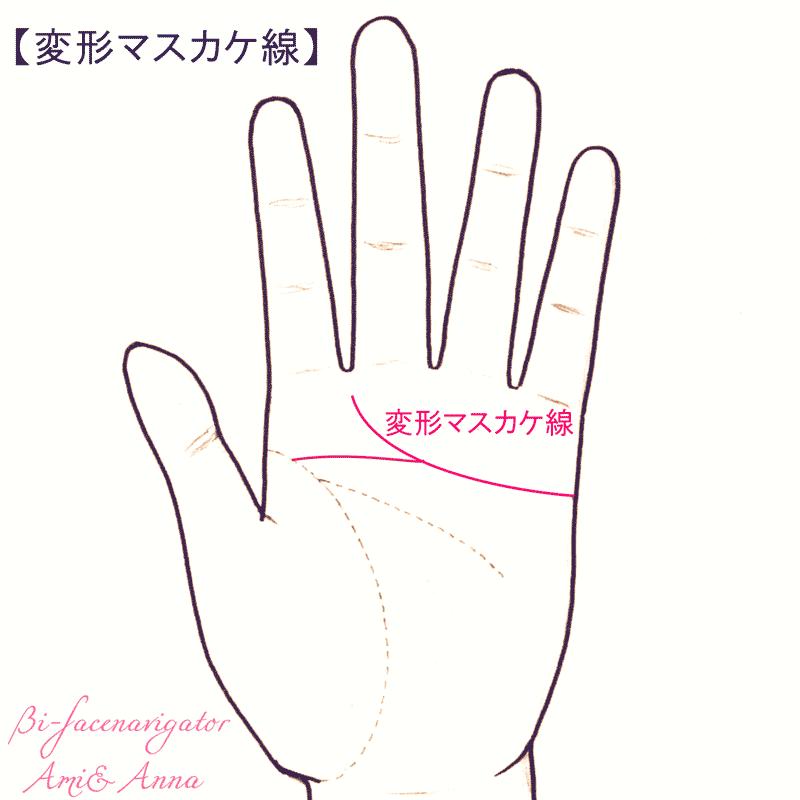 変形マスカケ線