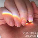 中指と薬指の爪の白点と手に映った太陽のプリズム